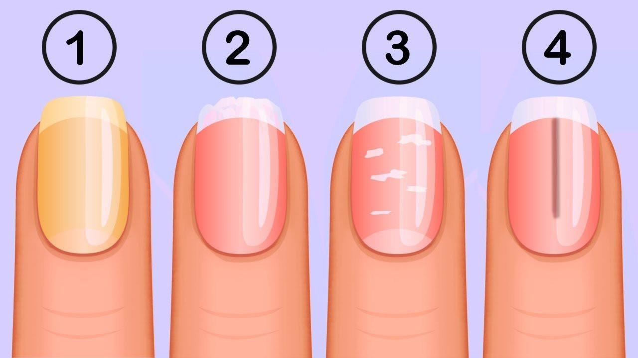Какво казват ноктите за вашето здраве